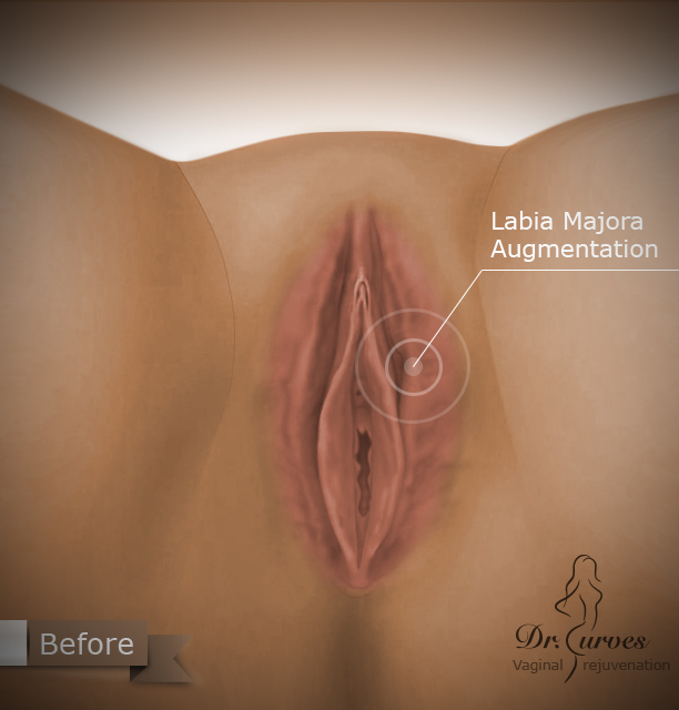 Labia Majora Augmentation1
