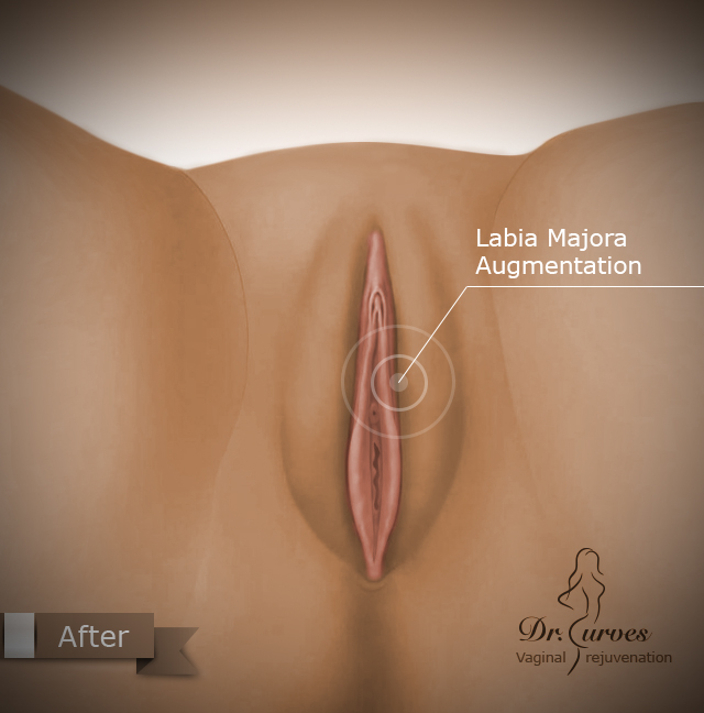 Labia Majora Augmentation2